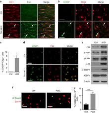 regulation of perk eif2α signalling by tuberous sclerosis complex