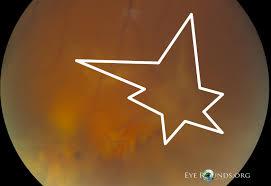 Figure 6 Focal Proliferative Vitreoretinopathy Inferiorly Adjacent To Large Retinal Break With Mild Star