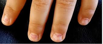 White Spots On Nail Beds by Peeling Nails Nails Falling Off Onychomadesis After Hand Foot