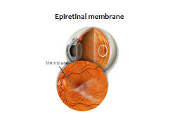 Macular Epiretinal Membrane