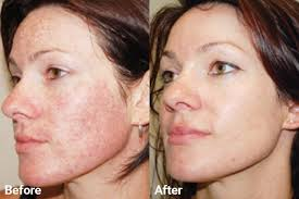 Pumpkin Enzyme Peel Before And After by Before U0026 After Skin Institute