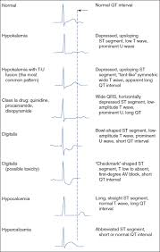 rr interval normal range basic electrocardiography guide to diagnostic tests