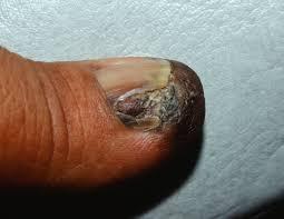 nail apparatus melanoma subungual melanoma