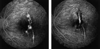 Photodynamic Therapy In Young Patients With Choroidal