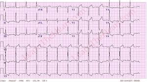 Left Ventricular Hypertrophy With Strain Pattern Example 3