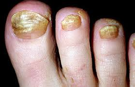the stages of a nail fungal infection gnfo