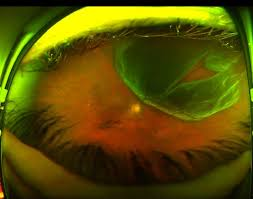 Retinal Detachment What The Fundus New Website For Sharing Optos Images By Eyedolatry