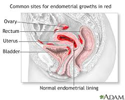 Uterus Lining Shedding Between Periods by Menstrual Disorders University Of Maryland Medical Center