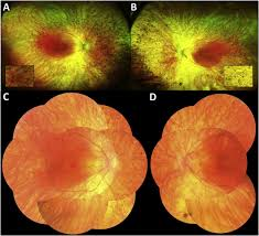 Optos Ultra Widefield Fundus Photos Of The Right A And Left B Eyes Demonstrate Extensive Bone Spicules Retinal Vascular Attenuation In