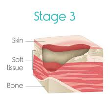 bed sores treatment ultimate guide vive health