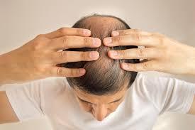 Pria Kepala Botak Berisiko Penyakit Jantung Koroner