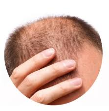 Cabelo Hair Tonic