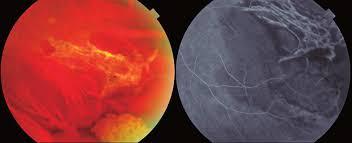 Chorioretinitis Sclopetaria Caused By An Intraorbital Metallic Foreign Body