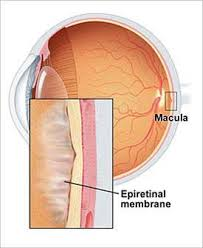 Epiretinal Membrane Is A Scar Tissue Like That Forms Over The Macula Near Center Of Eyes Retina Thats Responsible For Central