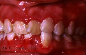 Asymptomatic Viral Shedding Oral Herpes by Oral U0026 Maxillo Surgery Viral Infections Of The Mouth
