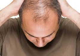 Pria Botak Rentan Terkena Kanker Usus