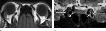 Nontraumatic Orbital Conditions Diagnosis With CT And MR Imaging In The Emergent Setting