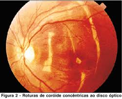 A Tomografia Computadorizada Mostrava Fratura Orbitaria Bilateral Fragmento Osseo Proximo Porcao Anterior Do Nervo Optico Esquerda Olho Direito