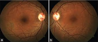 An Unusual Pattern Of Idiopathic Choroidal Folds Goel N Kumar V Raina UK Ghosh B