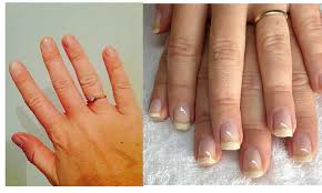 Receding Nail Bed by Repair Nails After Acrylics With My 1 Nail Care Routine