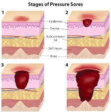 bed sores pressure ulcers are painful and devastating wounds