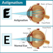 Astigmatism DO Pinterest Eye Pain Eyes And Astigmatism Eye
