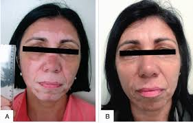 vitiligo loss of skin pigment treated by narrowband uvb july