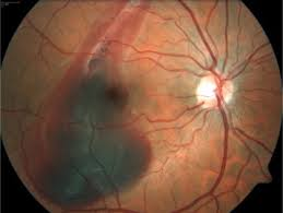 Right Eye Retinograph Showing Choroidal Rupture Temporal To The Fovea And Hemorrhage With Macular Involvement
