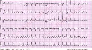 Atrial Flutter with 2 1 Conduction Example 2