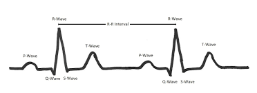 Entire Textbooks Are Written About The EKG But Lets Simplify Things Here By Convention With Each Heart Beat There Is A P Wave That Corresponds To
