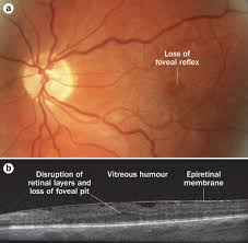 Christmas Tree Cataract Images by Ophthalmic Manifestations Of Inherited Neurodegenerative Disorders