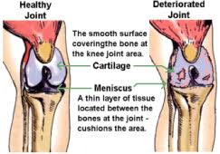 medical professional knee pads proknee