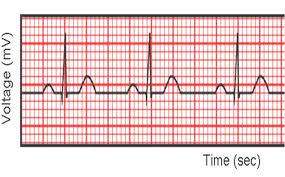 rr interval normal range ms 1 medschooljournal