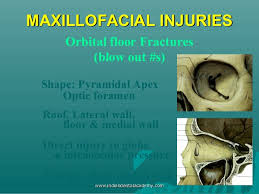 Orbital Floor Fracture Treatment by Classification U0026 Management Of Zygomatic Complex Fractures Including U2026