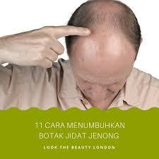 11 Cara Menumbuhkan Rambut Botak Bagian Depan Jidat Jenong Pria