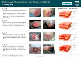 chasing the easterly winds pressure ulcers