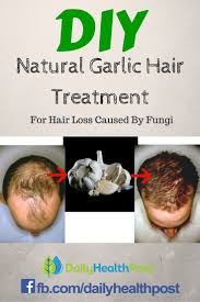 Buy Pumpkin Seed Oil For Hair Loss by 5134 Best Treatment For Women Hair Loss Images On Pinterest Hair