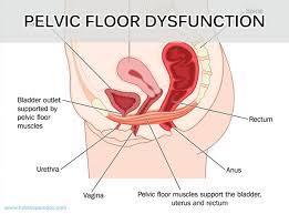 dr hoang integrative pain managementpelvic floor problems
