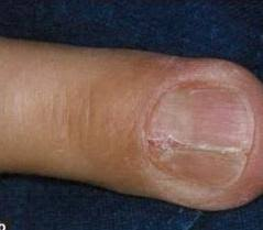 nail bed injury orthobullets
