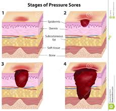 stages of pressure sores royalty free stock images image 22146779