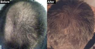 Minoxidil Shedding Phase Duration by How To Make My Hair Grow Back My Hair Loss And Regrowth Hair
