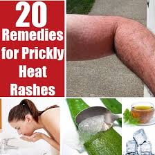 55 best Heat Rash images on Pinterest