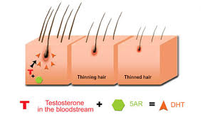 Propecia Shedding After 1 Year by Topical Finasteride U2013 A Better Treatment Than Oral Propecia
