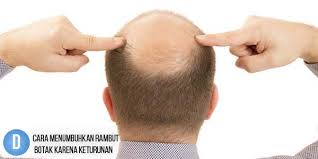 Cara Menumbuhkan Rambut Botak Karena Keturunan