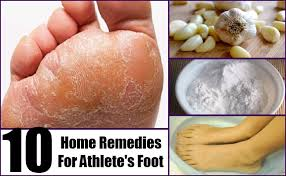 Top 10 Natural Reme s for Athlete s Foot That WORK ORGANIC