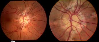 There Is A Risk Of Subretinal Neovascular Membrane From The Angioid Streaks And Patient Asked To Contact Eye Casualty If Any Visual