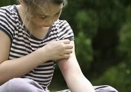 hausmittel gegen mücken wirksame und natürliche mittel