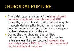 Posterior Segment Manifestations Of Blunt Trauma