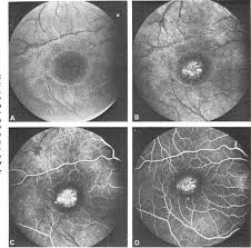 Figure 2 From Hereditary Choroidal Dystrophies Fluorescein