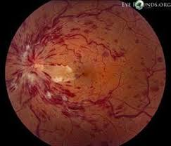 Central Retinal Vein Occlusion With Cilioretinal Artery